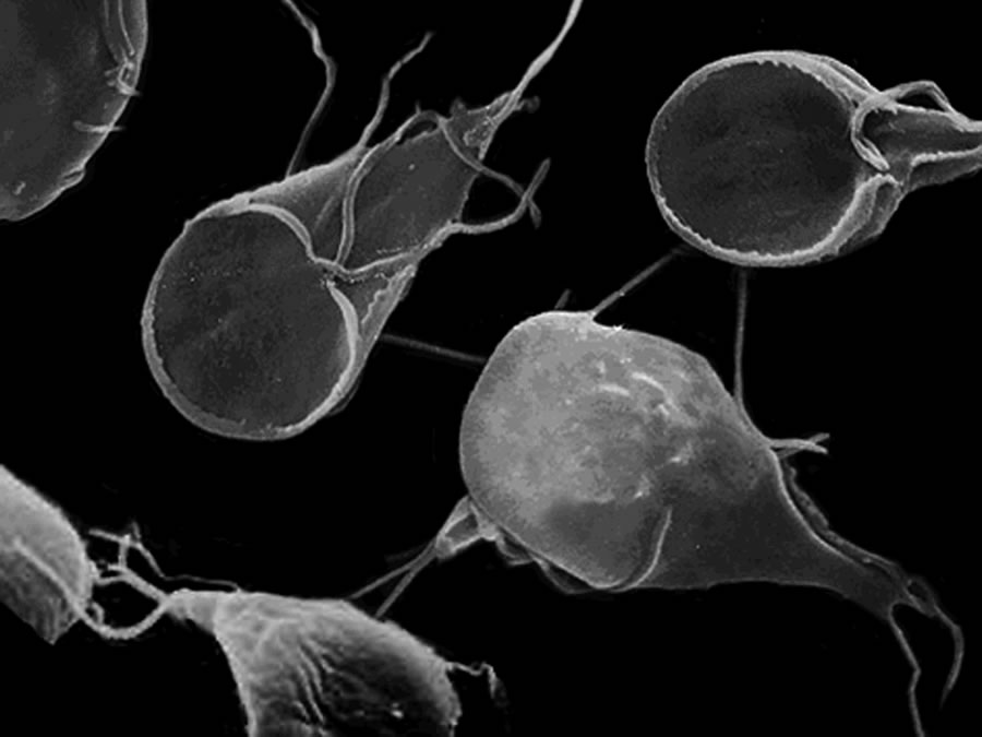 Parásitos que infectan su organismo